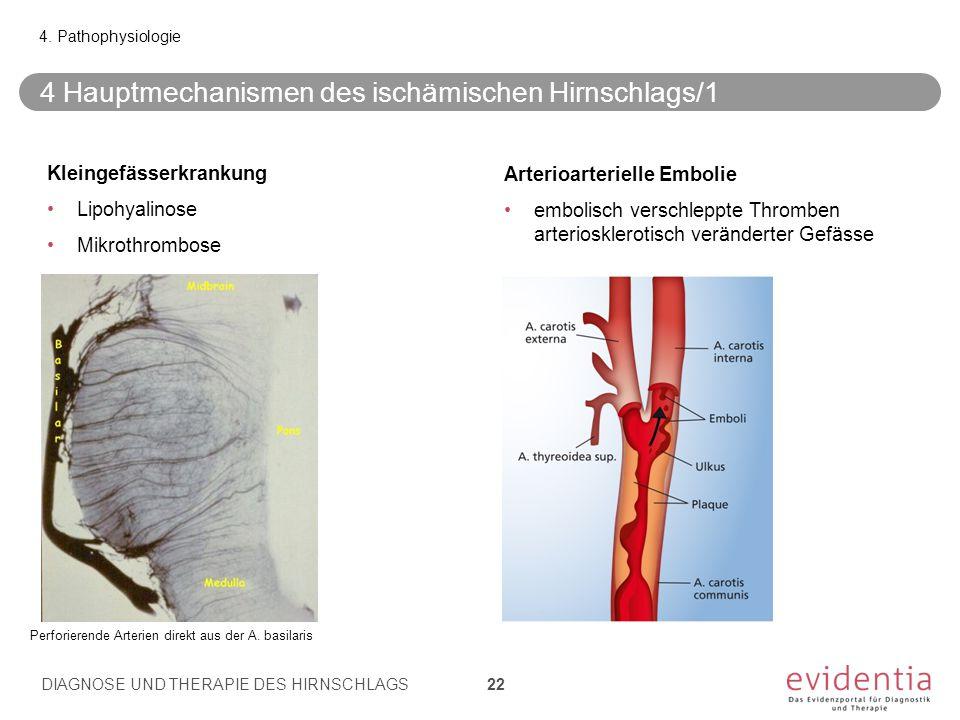 4 Hauptmechanismen des ischämischen Hirnschlags/1 4. Pathophysiologie DIAGNOSE UND THERAPIE DES HIRNSCHLAGS 22 Kleingefässerkrankung Lipohyalinose Mik
