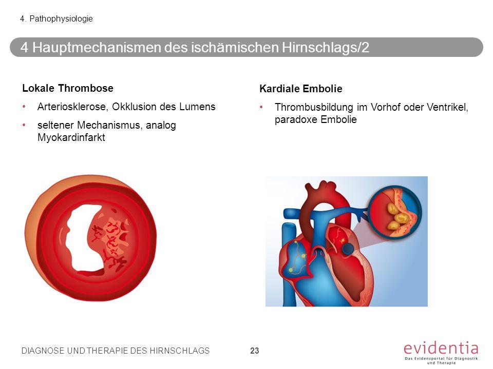 4 Hauptmechanismen des ischämischen Hirnschlags/2 4.