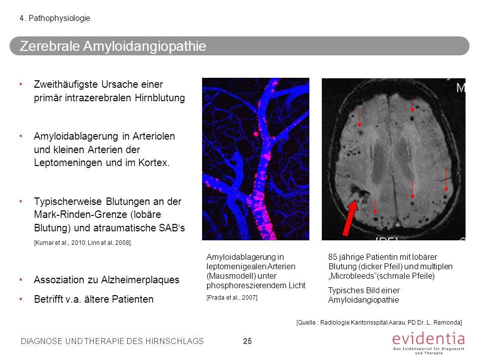 Zweithäufigste Ursache einer primär intrazerebralen Hirnblutung Amyloidablagerung in Arteriolen und kleinen Arterien der Leptomeningen und im Kortex.