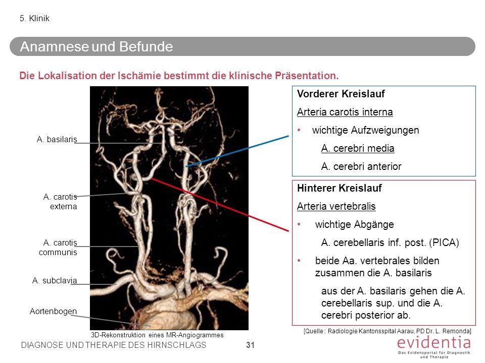 Die Lokalisation der Ischämie bestimmt die klinische Präsentation. 5. Klinik Vorderer Kreislauf Arteria carotis interna wichtige Aufzweigungen A. cere