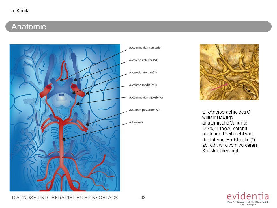 Anatomie 5. Klinik * A. basilaris CT-Angiographie des C. willisii: Häufige anatomische Variante (25%): Eine A. cerebri posterior (Pfeil) geht von der