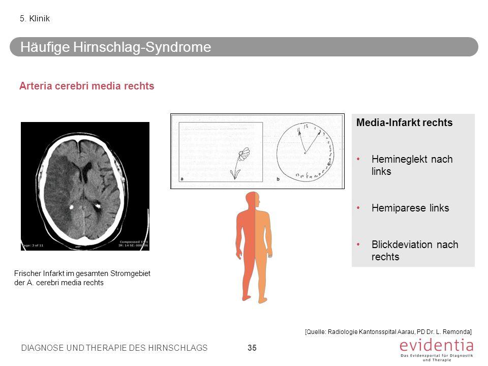 Arteria cerebri media rechts Media-Infarkt rechts Hemineglekt nach links Hemiparese links Blickdeviation nach rechts Häufige Hirnschlag-Syndrome 5. Kl