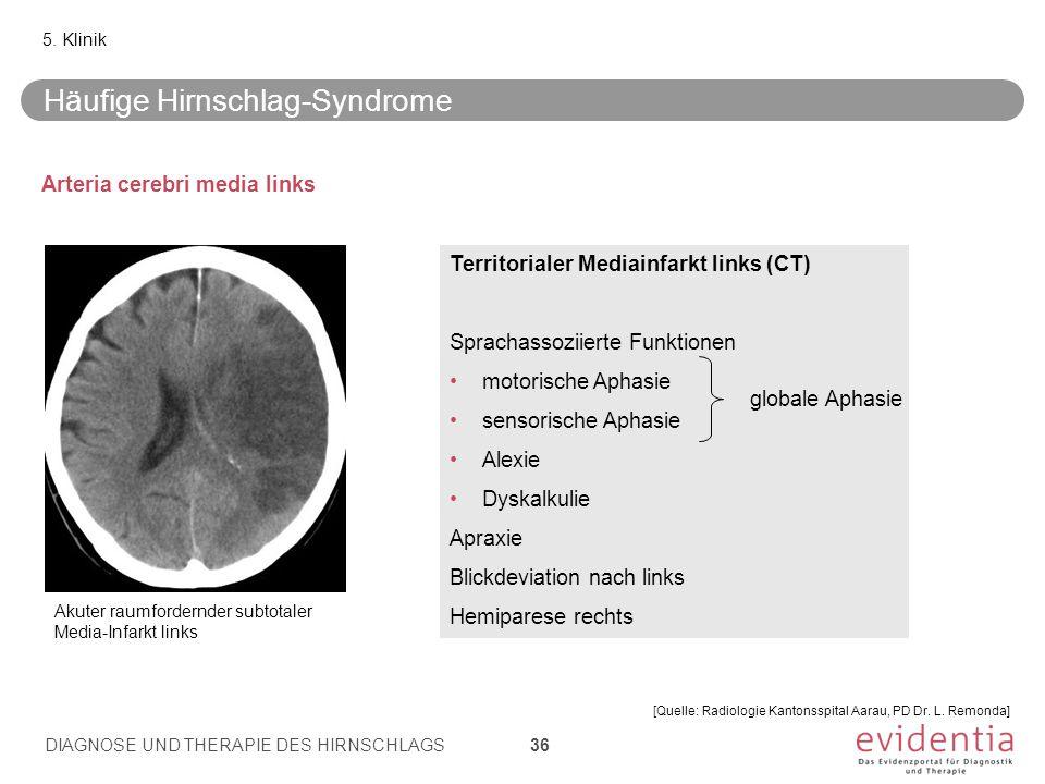 Arteria cerebri media links 5. Klinik Territorialer Mediainfarkt links (CT) Sprachassoziierte Funktionen motorische Aphasie sensorische Aphasie Alexie
