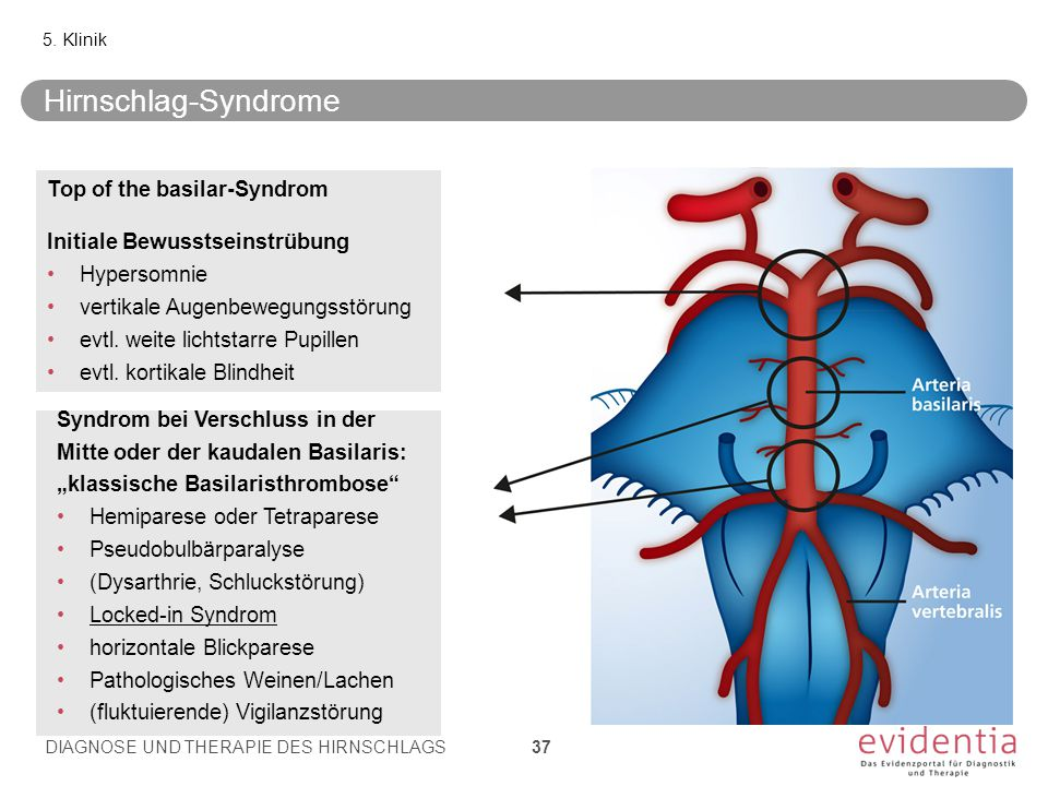 Top of the basilar-Syndrom Initiale Bewusstseinstrübung Hypersomnie vertikale Augenbewegungsstörung evtl. weite lichtstarre Pupillen evtl. kortikale B
