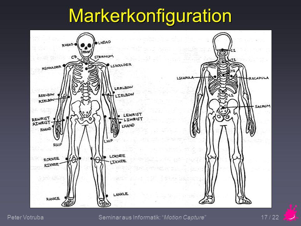 "Peter VotrubaSeminar aus Informatik: ""Motion Capture"" 17 / 22 Markerkonfiguration"