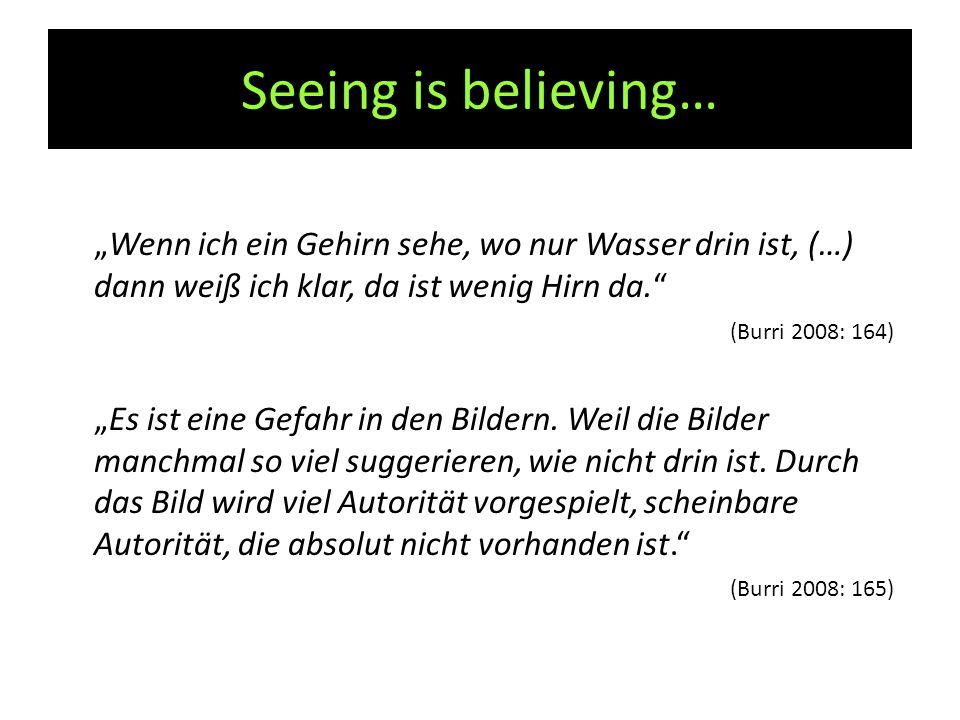 """Seeing is believing… """"Wenn ich ein Gehirn sehe, wo nur Wasser drin ist, (…) dann weiß ich klar, da ist wenig Hirn da. (Burri 2008: 164) """"Es ist eine Gefahr in den Bildern."""