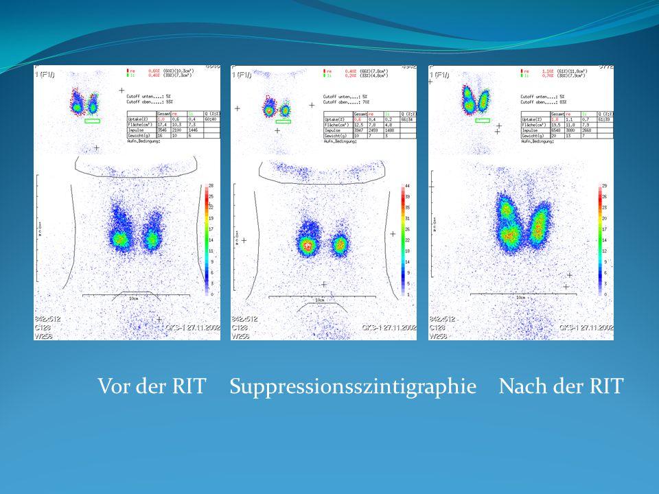 Vor der RITSuppressionsszintigraphie Nach der RIT