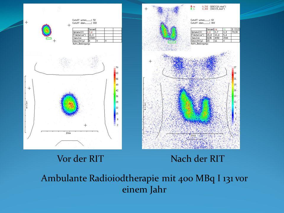 Vor der RITNach der RIT Ambulante Radioiodtherapie mit 400 MBq I 131 vor einem Jahr