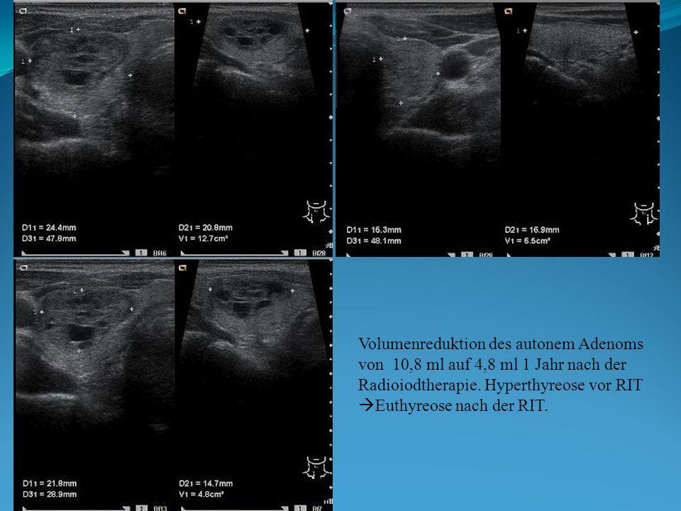 Volumenreduktion des autonem Adenoms von 10,8 ml auf 4,8 ml 1 Jahr nach der Radioiodtherapie. Hyperthyreose vor RIT  Euthyreose nach der RIT.