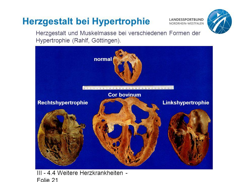 III - 4.4 Weitere Herzkrankheiten - Folie 21 Herzgestalt bei Hypertrophie Herzgestalt und Muskelmasse bei verschiedenen Formen der Hypertrophie (Rahlf