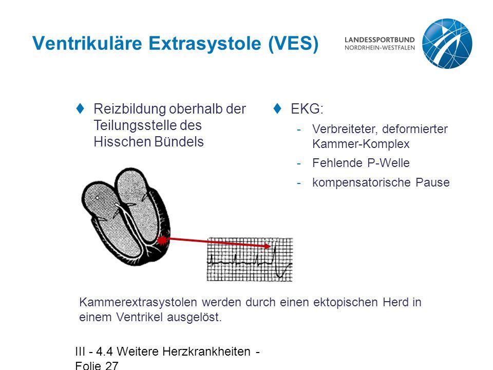 III - 4.4 Weitere Herzkrankheiten - Folie 27 Ventrikuläre Extrasystole (VES)  Reizbildung oberhalb der Teilungsstelle des Hisschen Bündels  EKG: -Ve