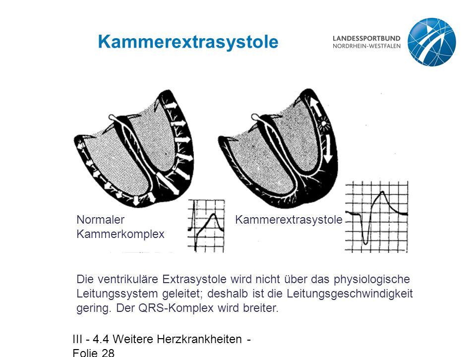 III - 4.4 Weitere Herzkrankheiten - Folie 28 Kammerextrasystole Die ventrikuläre Extrasystole wird nicht über das physiologische Leitungssystem geleit