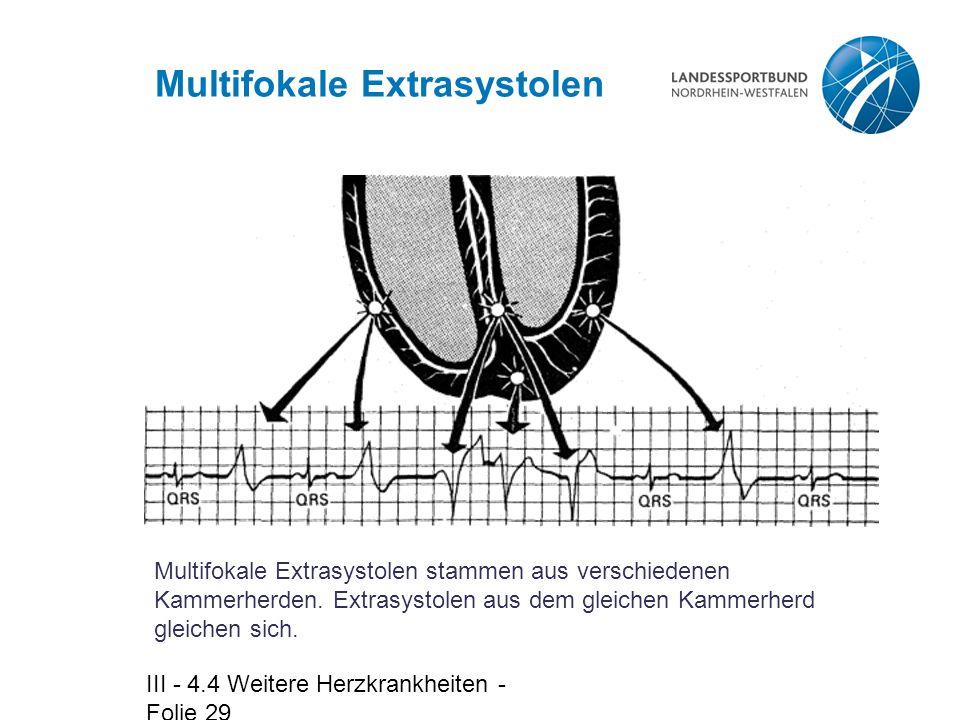 III - 4.4 Weitere Herzkrankheiten - Folie 29 Multifokale Extrasystolen Multifokale Extrasystolen stammen aus verschiedenen Kammerherden. Extrasystolen