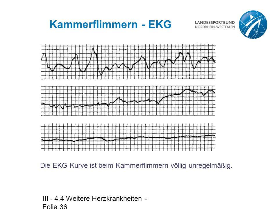 III - 4.4 Weitere Herzkrankheiten - Folie 36 Kammerflimmern - EKG Die EKG-Kurve ist beim Kammerflimmern völlig unregelmäßig.