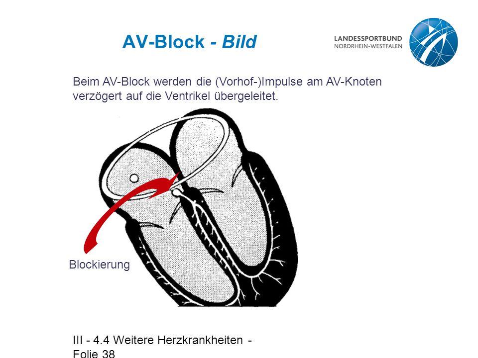 III - 4.4 Weitere Herzkrankheiten - Folie 38 AV-Block - Bild Beim AV-Block werden die (Vorhof-)Impulse am AV-Knoten verzögert auf die Ventrikel überge