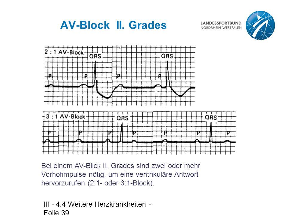 III - 4.4 Weitere Herzkrankheiten - Folie 39 AV-Block II. Grades Bei einem AV-Blick II. Grades sind zwei oder mehr Vorhofimpulse nötig, um eine ventri