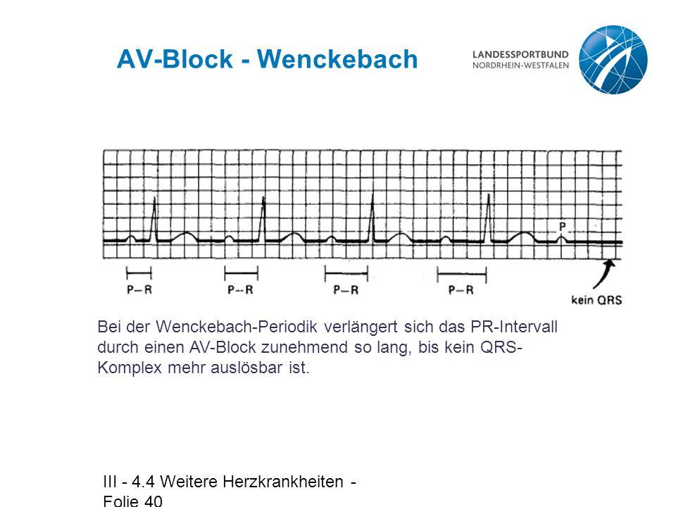 III - 4.4 Weitere Herzkrankheiten - Folie 40 AV-Block - Wenckebach Bei der Wenckebach-Periodik verlängert sich das PR-Intervall durch einen AV-Block z