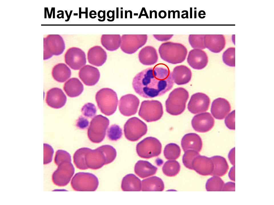 May-Hegglin-Anomalie