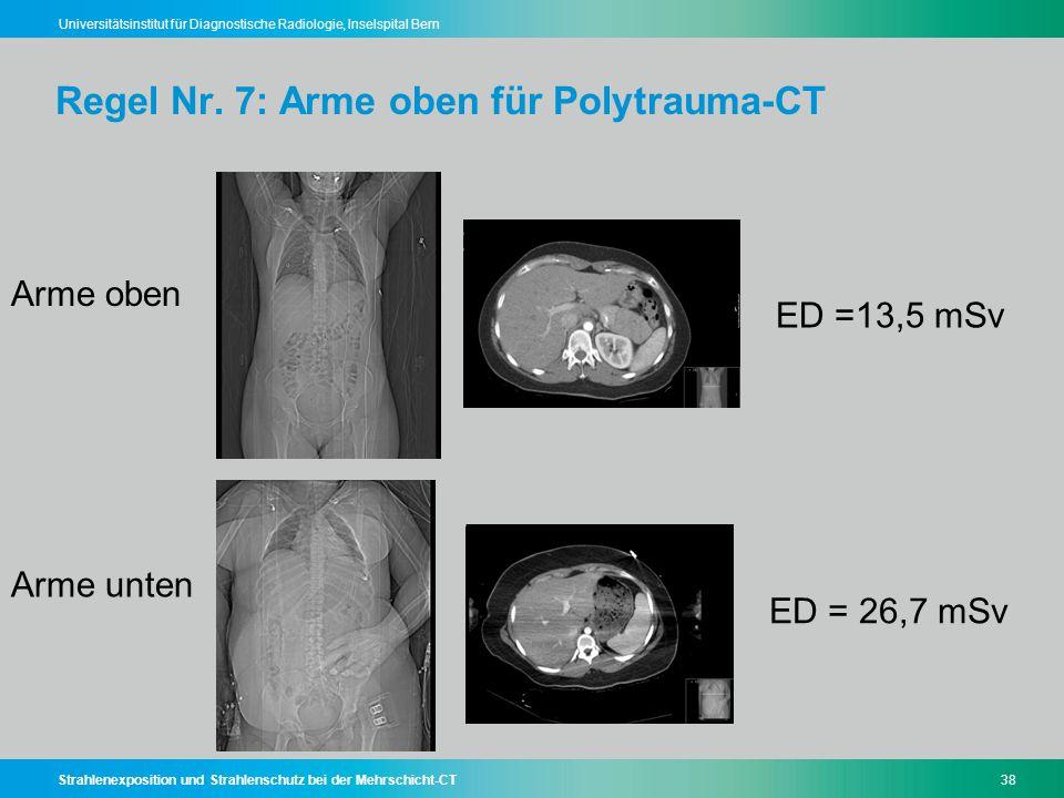 Strahlenexposition und Strahlenschutz bei der Mehrschicht-CT38 Universitätsinstitut für Diagnostische Radiologie, Inselspital Bern Regel Nr. 7: Arme o