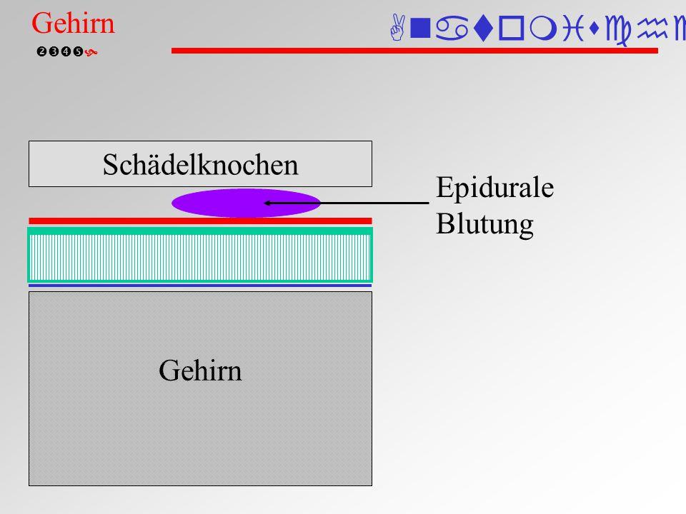  Epidurales Hämatom (Computertomographie) Normales Hirngewebe Hämatom Liquorgefüllte Hirnventrikel Epidurale Blutung Gehirn Anatomische Einteilung