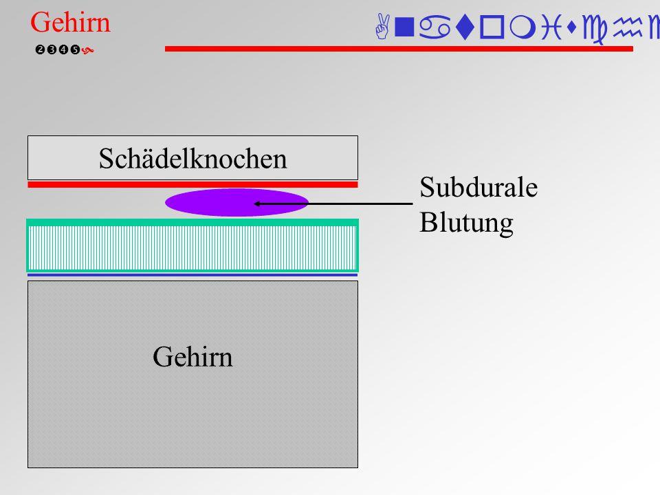  Subarachnoidale Blutung Schädelknochen Gehirn Subarachnoidal- blutung Anatomische Einteilung Gehirn