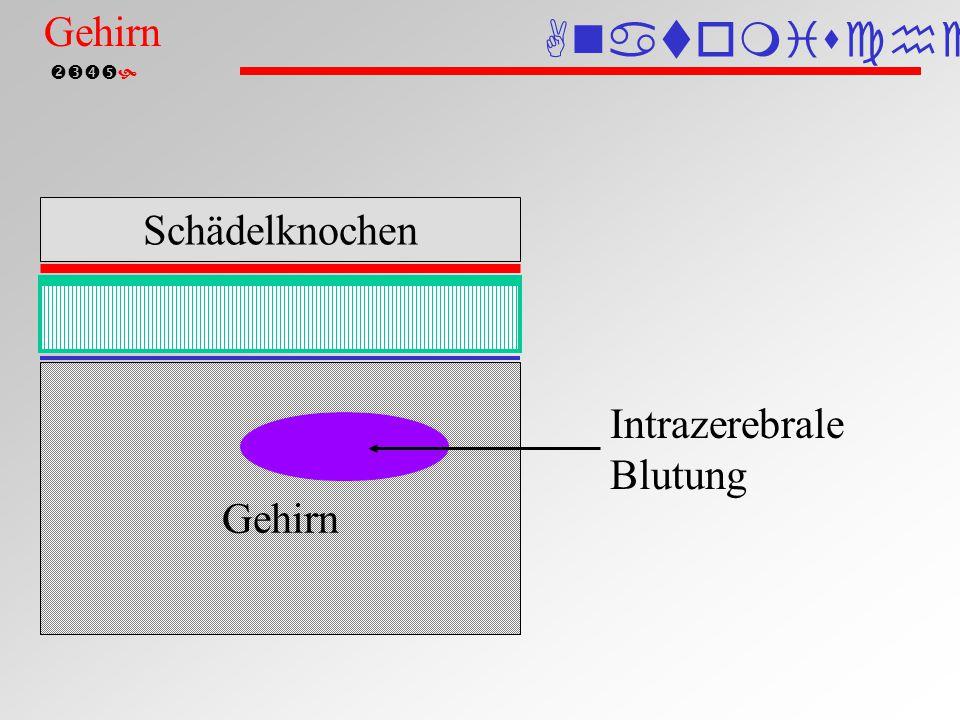  Intrazerebrale Blutung Blutung in den Hirnventrikel (Computertomographie) ICB Anatomische Einteilung Gehirn