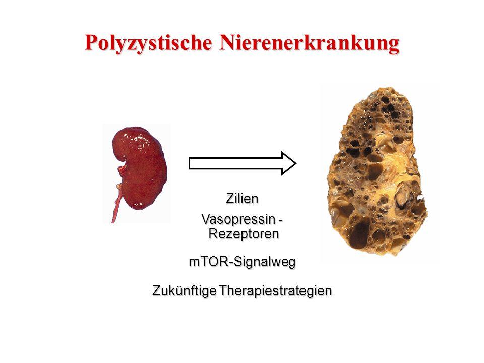 Pathologie der verschiedenen PKD Formen nach: Wilson P., N Engl J Med, 2004 Normale Niere Zystenbildung bei der Erwachsenenform der PKD (autosomal-dominant) Zystenbildung bei der Kindesform der PKD (autosomal-rezessiv)