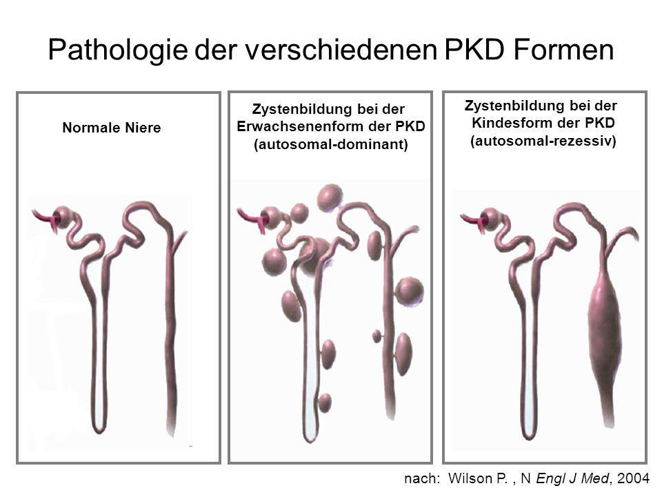 Pathologie der verschiedenen PKD Formen nach: Wilson P., N Engl J Med, 2004 Normale Niere Zystenbildung bei der Erwachsenenform der PKD (autosomal-dom