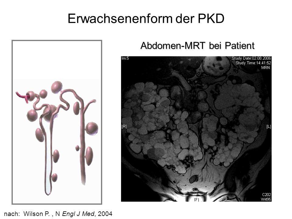Everolimus-Studie Einschlußkriterien –Diagnose von Zystennieren –Niereninsuffizienz Stadium II-III (Kreatinin-Clearance 30-90 ml/min) –18-65 Jahre Ausschlußkriterien –Normale Nierenfunktion (Kreatinin-Clearance > 90 ml/min) –Deutlich eingeschränkte Nierenfunktion (Kreatinin-Clearance < 30 ml/min) –Stattgehabte Subarachnoidalblutung –Stattgehabte lebensbedrohliche Infektionen –Kontraindikation für MRT-Untersuchung (Herzschrittmacher, Metallimplantate)