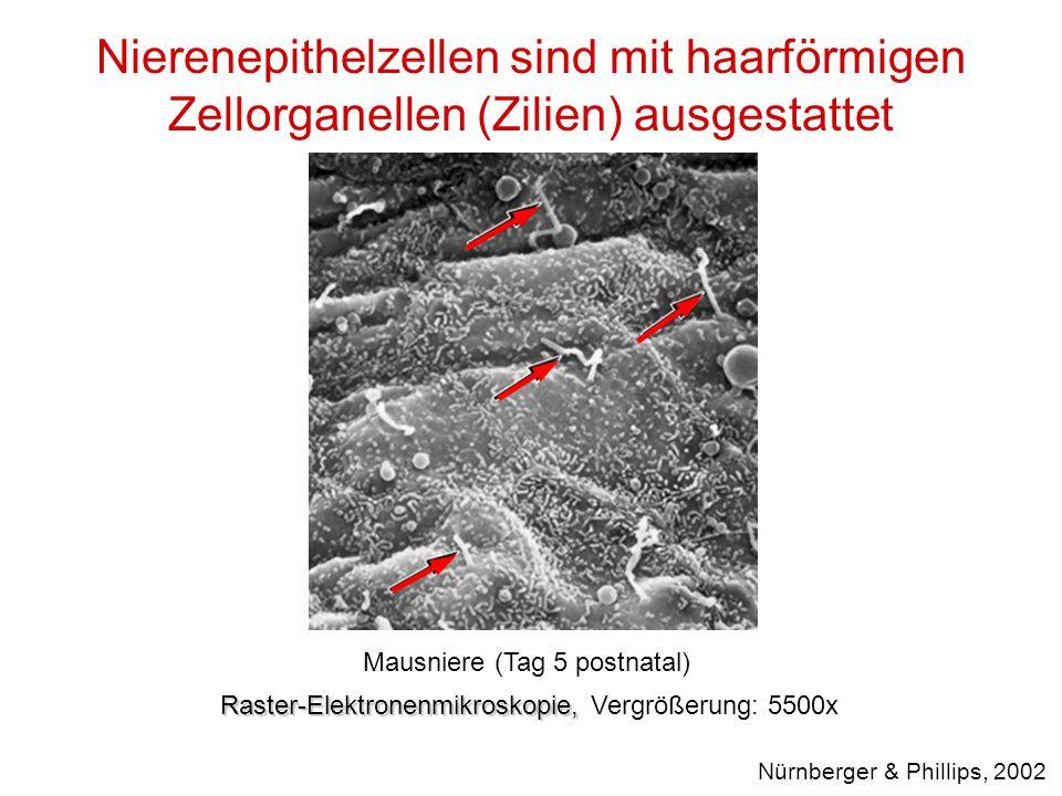 Nierenepithelzellen sind mit haarförmigen Zellorganellen (Zilien) ausgestattet Raster-Elektronenmikroskopie, Raster-Elektronenmikroskopie, Vergrößerun
