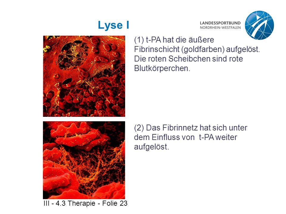 III - 4.3 Therapie - Folie 23 Lyse I (1) t-PA hat die äußere Fibrinschicht (goldfarben) aufgelöst. Die roten Scheibchen sind rote Blutkörperchen. (2)