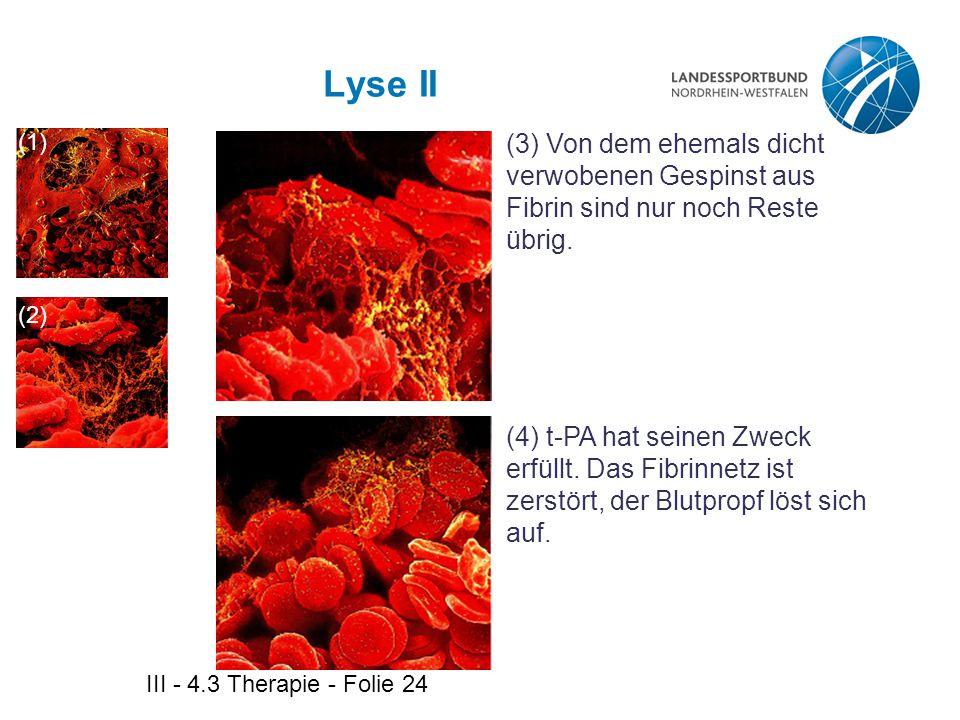 III - 4.3 Therapie - Folie 24 Lyse II (3) Von dem ehemals dicht verwobenen Gespinst aus Fibrin sind nur noch Reste übrig. (4) t-PA hat seinen Zweck er