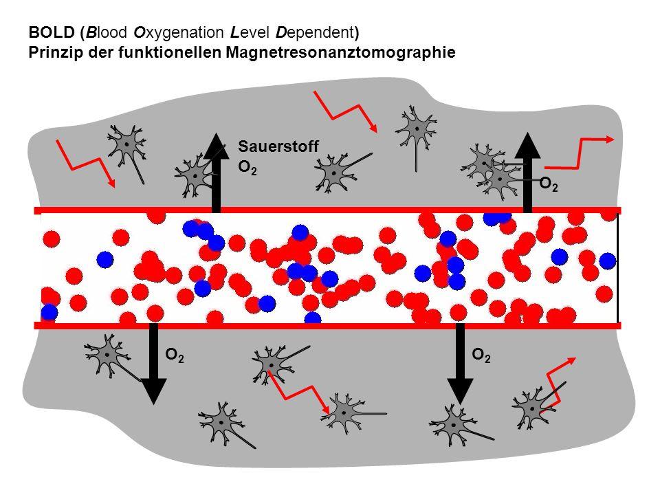 Sauerstoff O2O2 O2O2 BOLD (Blood Oxygenation Level Dependent) Prinzip der funktionellen Magnetresonanztomographie