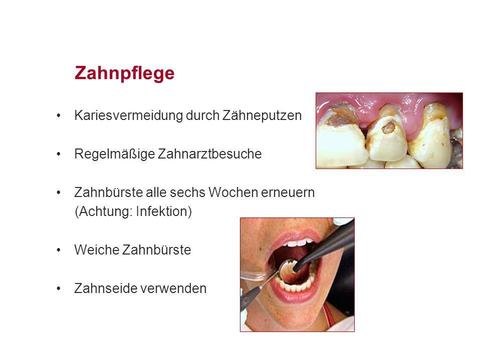 Zahnpflege Kariesvermeidung durch Zähneputzen Regelmäßige Zahnarztbesuche Zahnbürste alle sechs Wochen erneuern (Achtung: Infektion) Weiche Zahnbürste Zahnseide verwenden