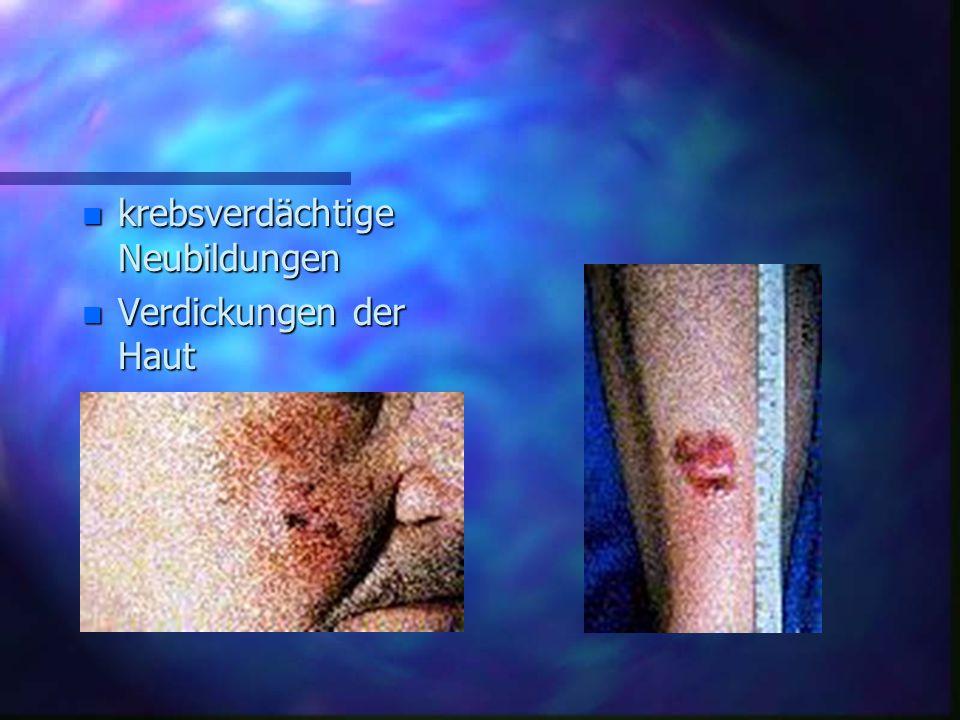 n krebsverdächtige Neubildungen n Verdickungen der Haut