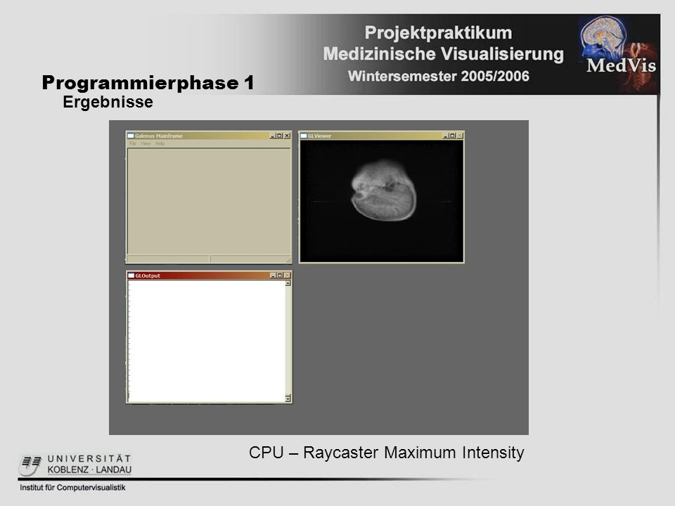 Programmierphase 1 Ergebnisse CPU – Raycaster Maximum Intensity