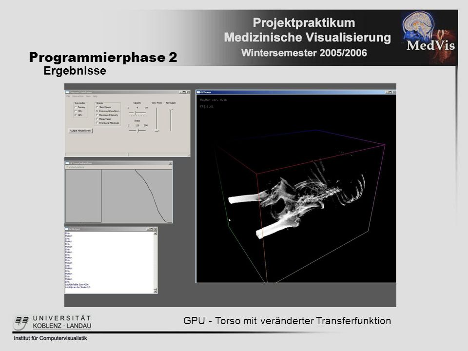 Programmierphase 2 Ergebnisse GPU - Torso mit veränderter Transferfunktion