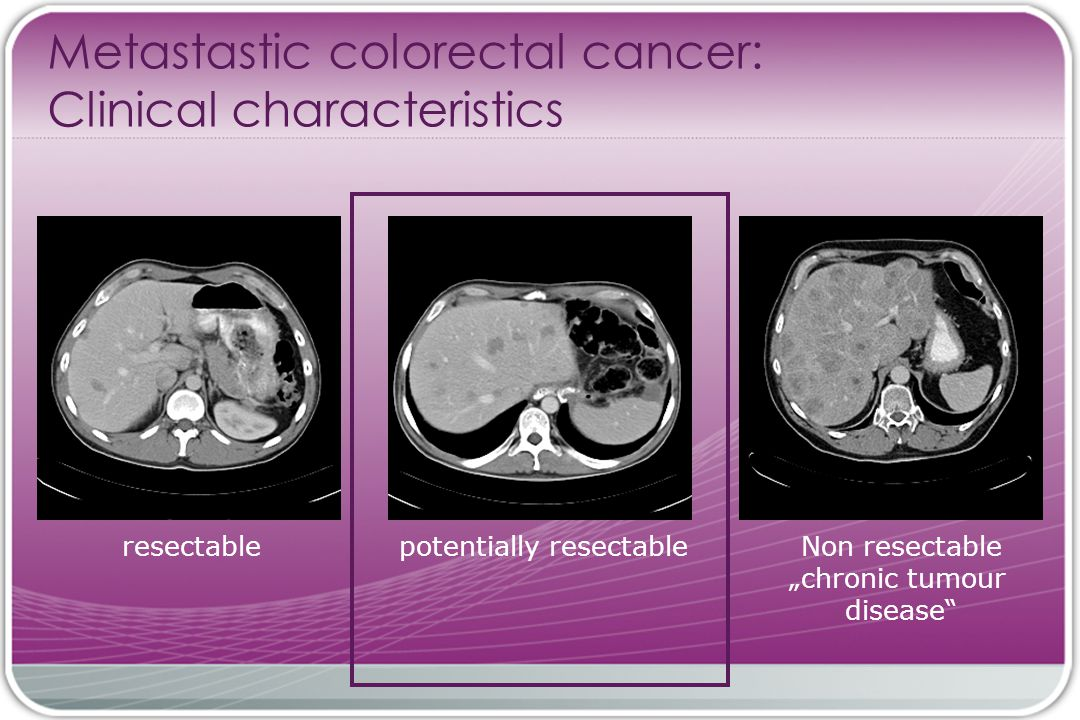 "resectablepotentially resectableNon resectable ""chronic tumour disease Metastastic colorectal cancer: Clinical characteristics"
