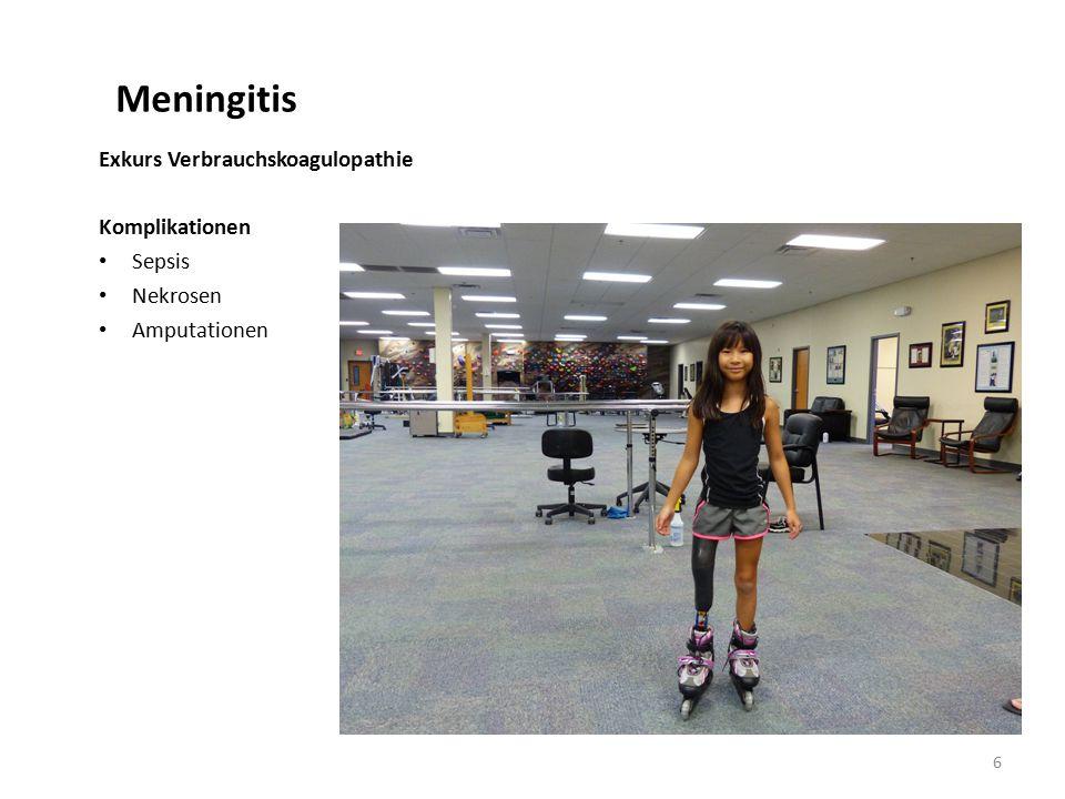 Meningitis Exkurs Verbrauchskoagulopathie Komplikationen Sepsis Nekrosen Amputationen 6