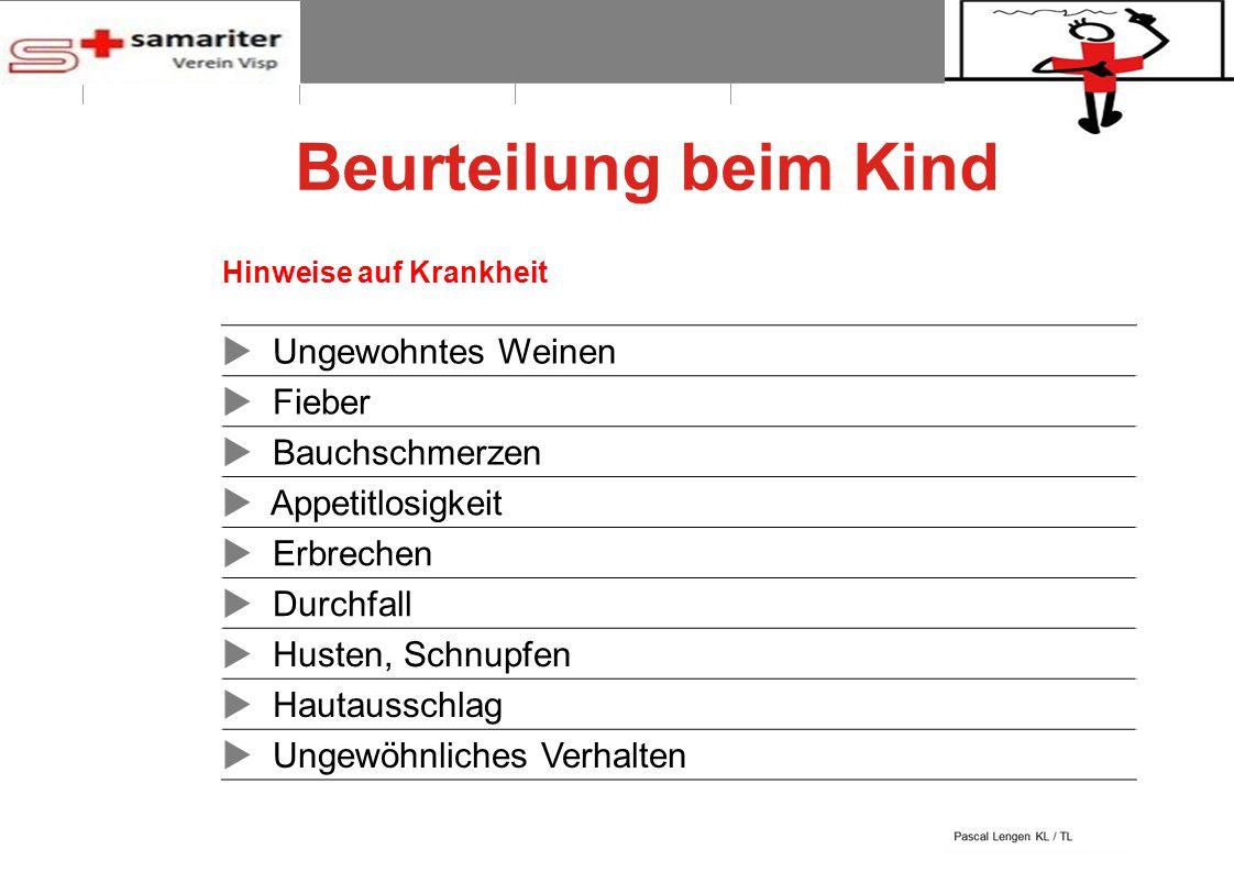 BLS-AED REPE 2012 6 © Schweizerischer Samariterbund Beurteilung beim Kind Hinweise auf Krankheit  Ungewohntes Weinen  Fieber  Bauchschmerzen  Appe
