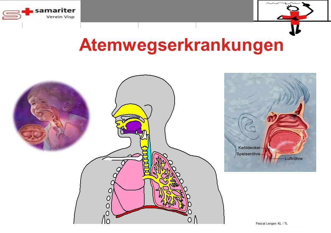 BLS-AED REPE 2012 8 © Schweizerischer Samariterbund Atemwegserkrankungen