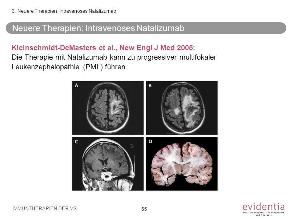Neuere Therapien: Intravenöses Natalizumab Kleinschmidt-DeMasters et al., New Engl J Med 2005: Die Therapie mit Natalizumab kann zu progressiver multi