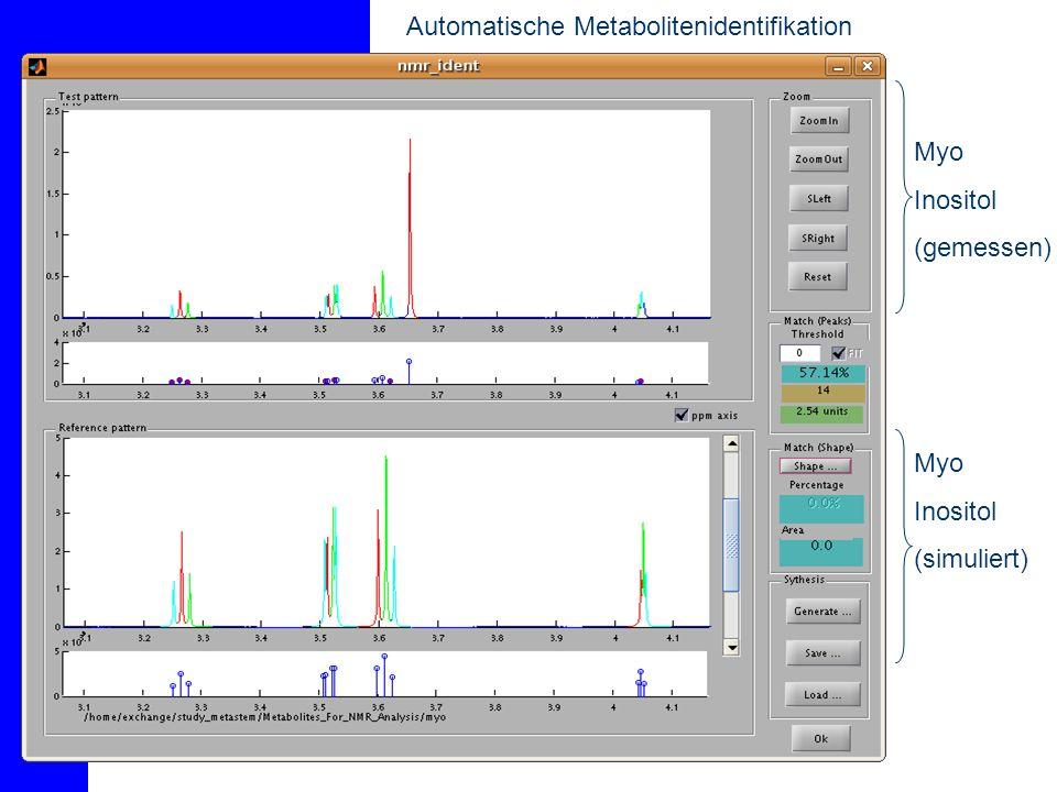 Automatische Metabolitenidentifikation - Fit