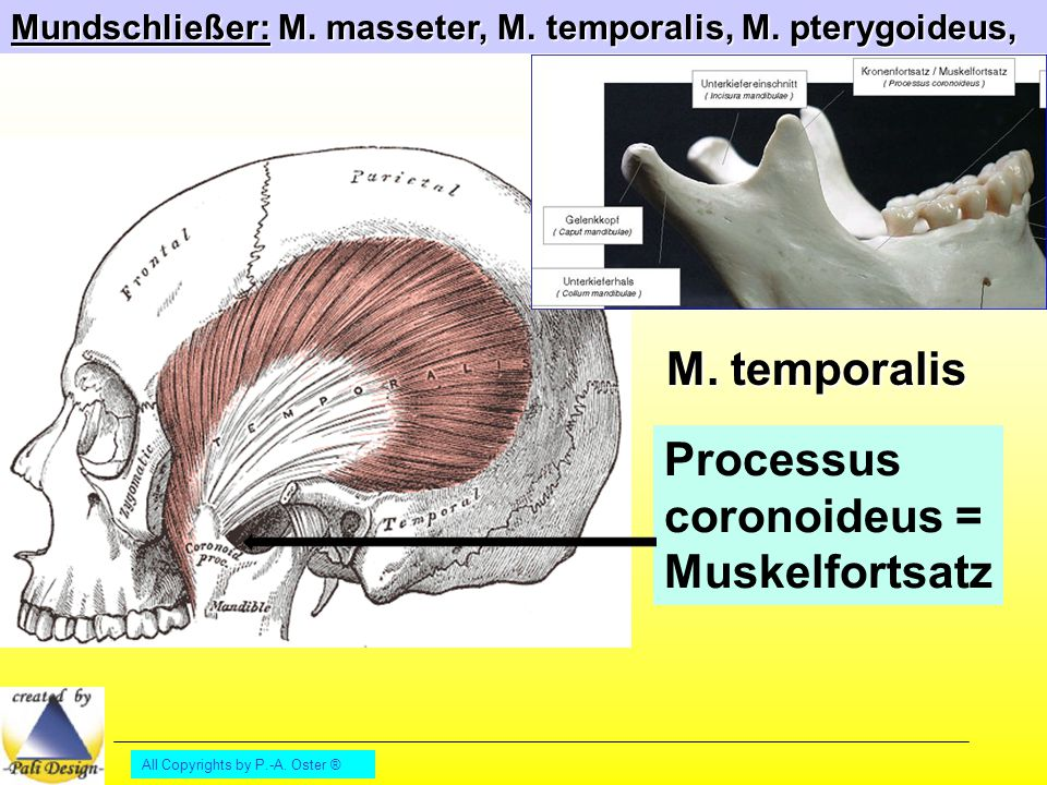 All Copyrights by P.-A. Oster ® Mundschließer: M. masseter, M. temporalis, M. pterygoideus, Processus coronoideus = Muskelfortsatz M. temporalis