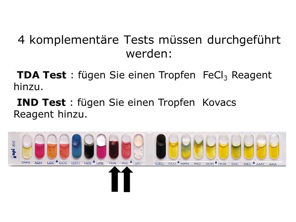 4 komplementäre Tests müssen durchgeführt werden: TDA Test : fügen Sie einen Tropfen FeCl 3 Reagent hinzu.