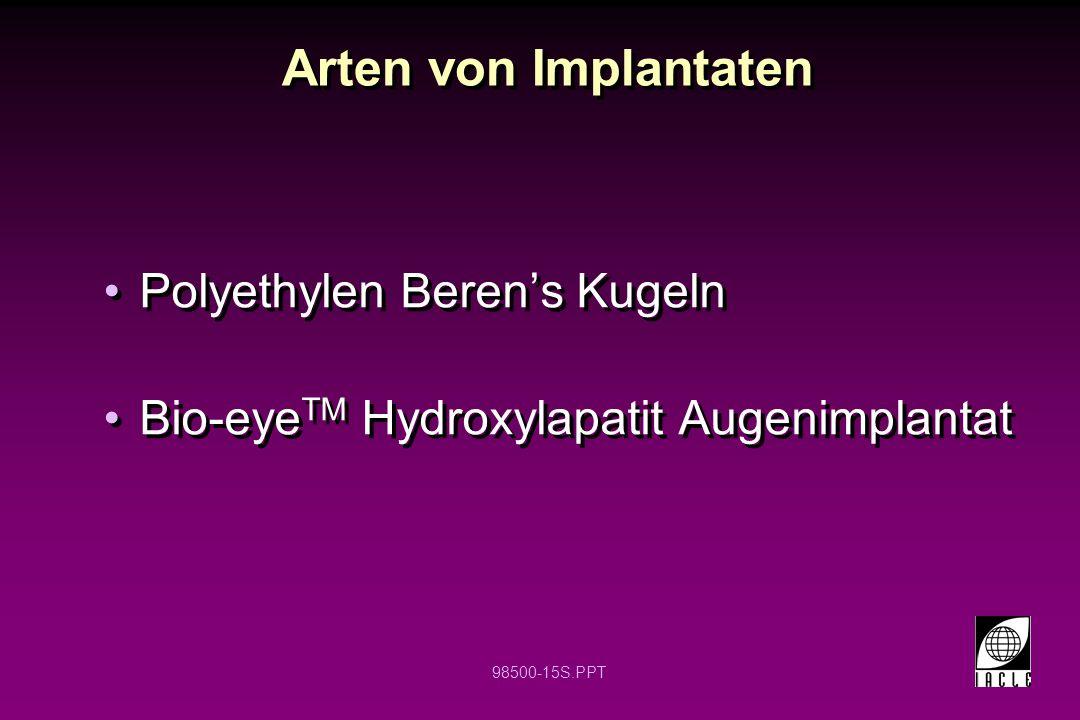98500-15S.PPT Arten von Implantaten Polyethylen Beren's Kugeln Bio-eye TM Hydroxylapatit Augenimplantat Polyethylen Beren's Kugeln Bio-eye TM Hydroxyl