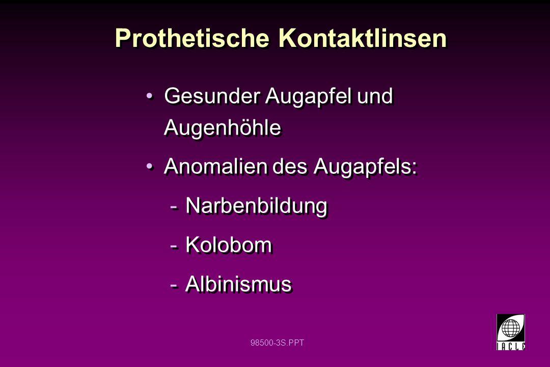 98500-3S.PPT Prothetische Kontaktlinsen Gesunder Augapfel und Augenhöhle Anomalien des Augapfels: -Narbenbildung -Kolobom -Albinismus Gesunder Augapfe