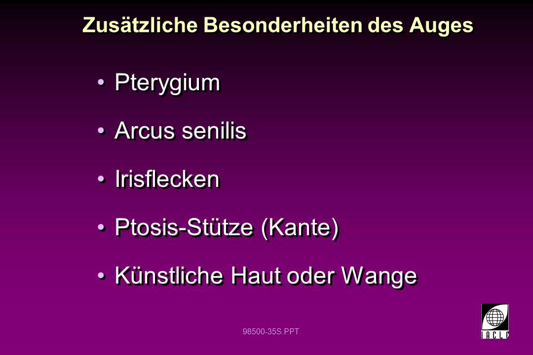 98500-35S.PPT Zusätzliche Besonderheiten des Auges Pterygium Arcus senilis Irisflecken Ptosis-Stütze (Kante) Künstliche Haut oder Wange Pterygium Arcu