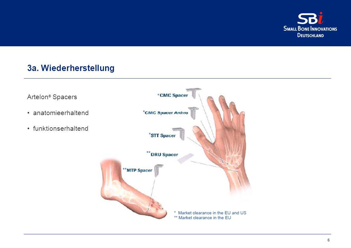 6 3a. Wiederherstellung Artelon ® Spacers anatomieerhaltend funktionserhaltend
