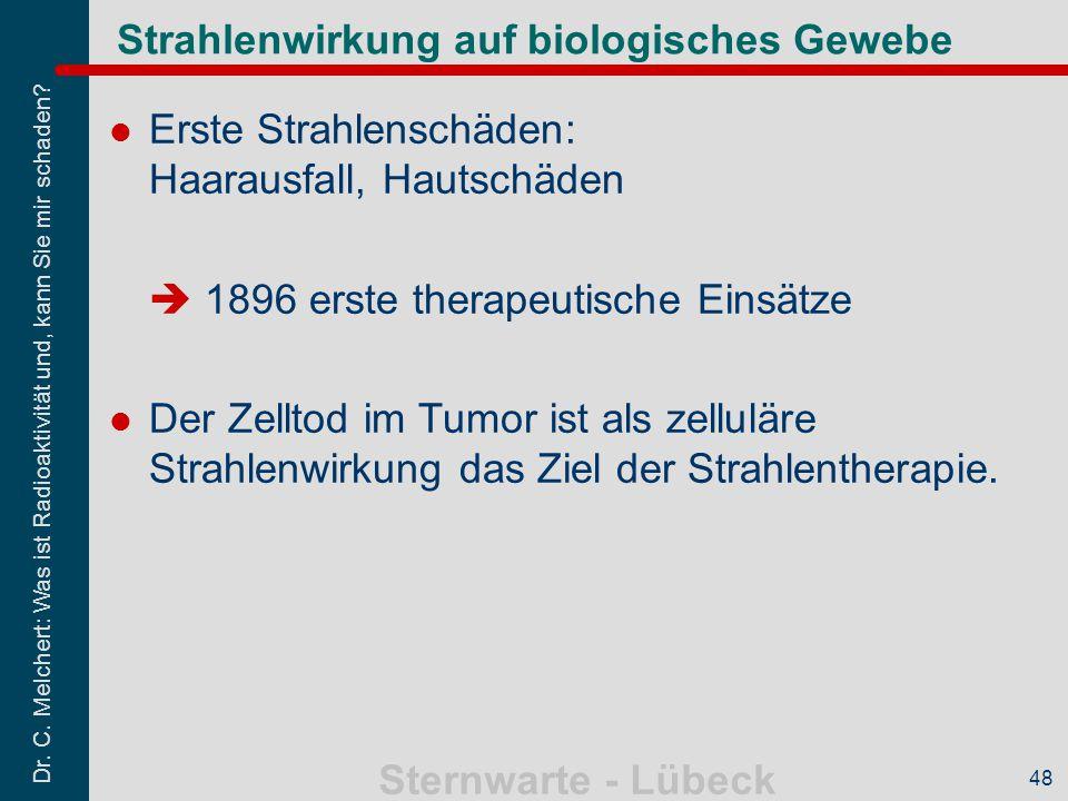 Dr. C. Melchert: Was ist Radioaktivität und, kann Sie mir schaden? Sternwarte - Lübeck 48 Strahlenwirkung auf biologisches Gewebe Erste Strahlenschäde